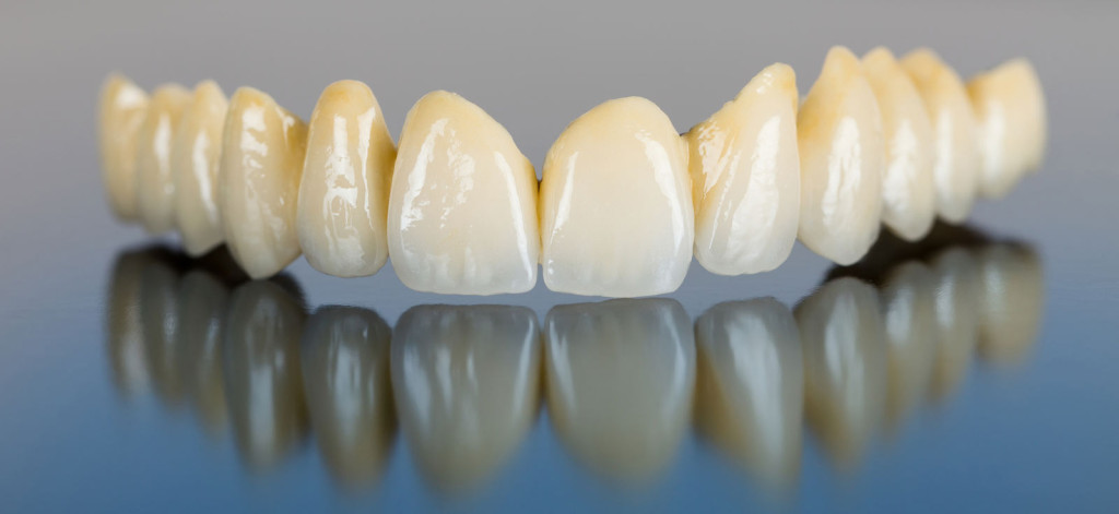 bigstock-Porcelain-Teeth-Dental-Bridg-48878822