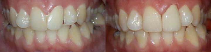Efekat postavljanja krunice na jedan zub - leva jedinica (desno na slici)