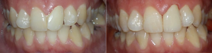 Evident effect of using just a single veneer: teeth 1-left