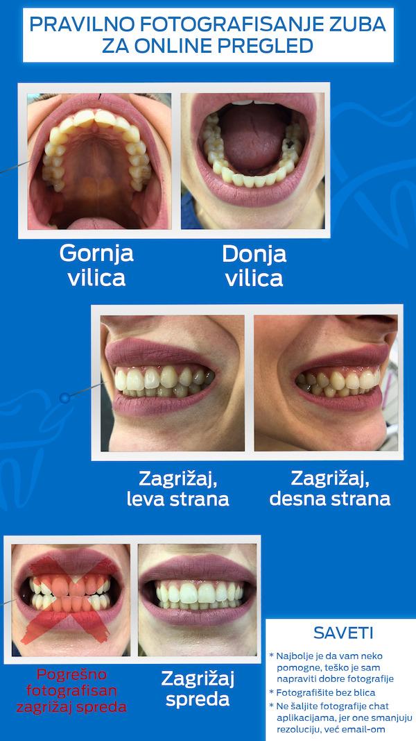 fotografija zuba